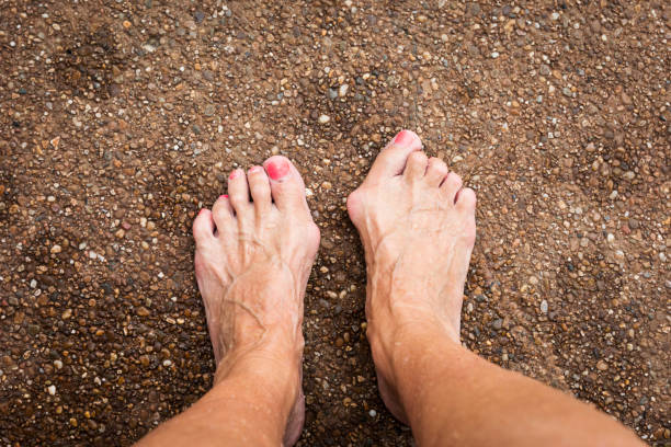 Cosmetic Foot Surgery For Hammertoes And Bunions