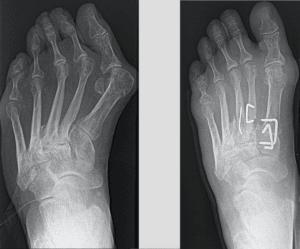 Pediatric Foot Deformities