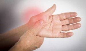 Arthritis Disorders